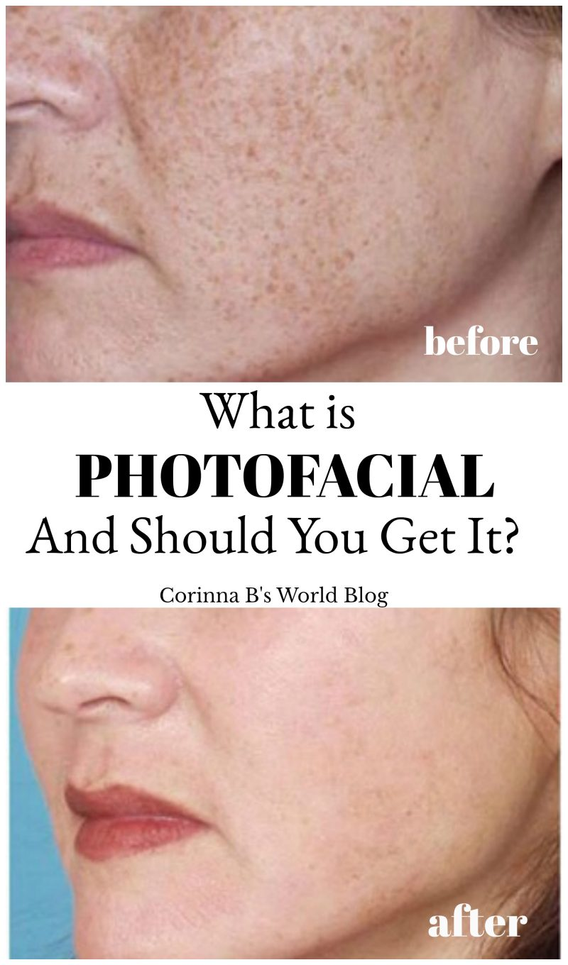 What Is Photofacial or IPL?